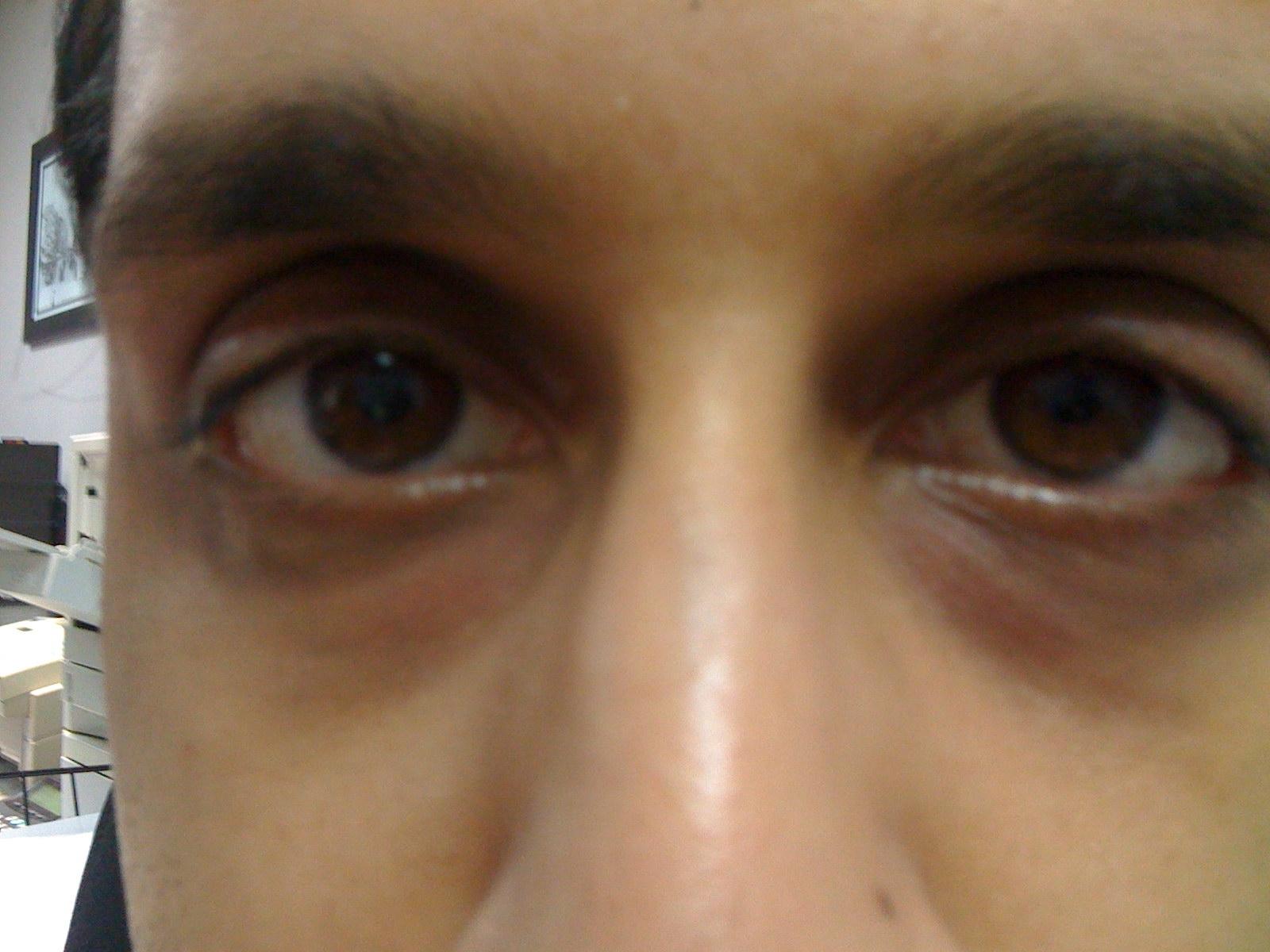sunken eyes treatment - HD1600×1200