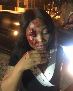 See Pretty Lady Mercilessly Beaten & Robbed By Taxify Driver In Lagos(photos)