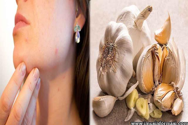 Manfaat Bawang Putih dan Madu Untuk Wajah