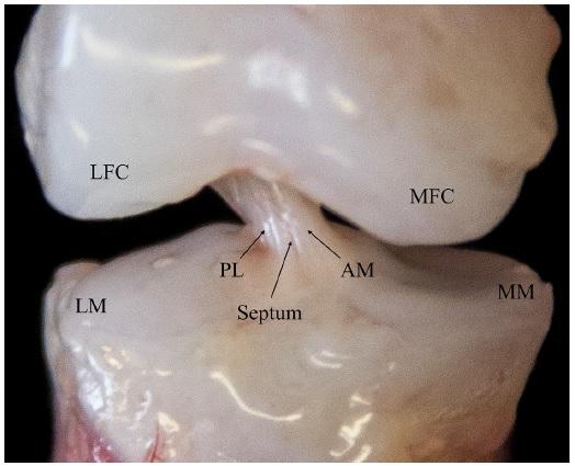 Fisioinforma: Estudo anatómico do Ligamento Cruzado Anterior