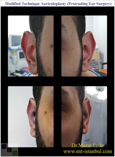 Otoplasty - Pinnaplasty - Auriculoplasty - Cosmetic Ear Surgery - Ear Plastic Surgery - Surgical Correction of Prominent Ears - Protruding Ear Surgery - Ear Reshaping - Ear plastic surgery in Istanbul - Modified technique otoplasty - Modified technique auriculoplasty - Correction of prominent ears in Istanbul  - Treatment of protruding ear - Bat ear - Obtrusive ears - Unfolded ears - Cosmetic ear surgery in Istanbul - Before and after photos for ear plastic surgery in Istanbul, Turkey - Protruding ear surgery - Conchomastoid technique for otoplasty