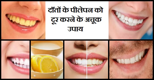 दाँतों के पीलेपन को दूर करने के अचूक उपाय