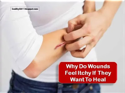 Why Do Wounds Feel Itchy If They Want To Heal