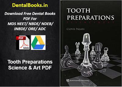 Tooth Preparations Science & Art PDF