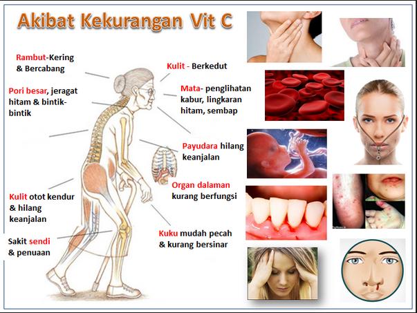 Hasil gambar untuk akibat kekurangan vitamin c