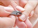 Cara Mengatasi Hangnail, Kulit Lancip yang Sering Nongol di Dekat Kuku Jari Tangan atau Kaki
