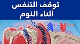 توقف التنفس أثناء النوم ما هو و آثاره الصحية  وكيف يمكن علاجه