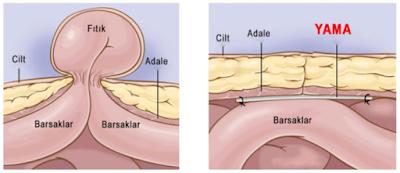 Göbek Fıtığı (Umblikal Herni) Ameliyatı Sürecinin Öncesi Yapılacaklar