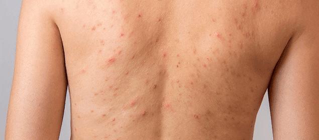 acné en las espalda