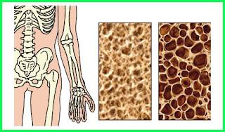 materi pelajaran kelainan pada tulang kelas 5 sd