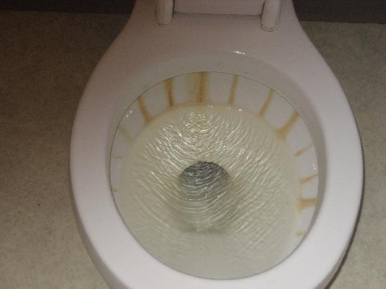 Không cần hóa chất: Cách nhanh chóng để loại bỏ cặn vôi tích tụ từ vành nhà vệ sinh