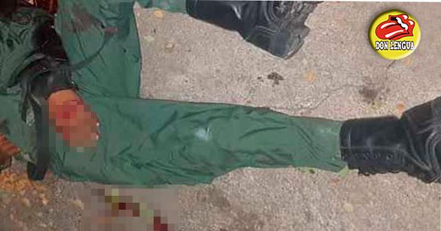 Un soldado mató a su compañero mientras jugaban con un fusil en el Táchira