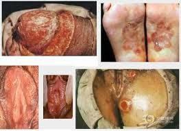 Obat Sifilis Untuk Wanita