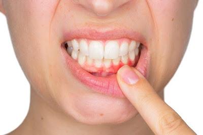 Não é nenhum segredo que a doença da gengiva pode levar a uma série de problemas de saúde, mas muitos não têm considerado a relação entre a saúde bucal e demência .