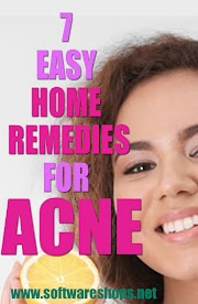 Acne home remedies - Treat Acne by home remedy