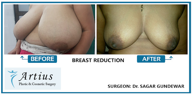 Breast reduction in Mumbai