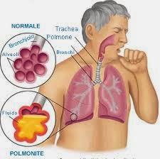 Obat Bronkitis Kronis
