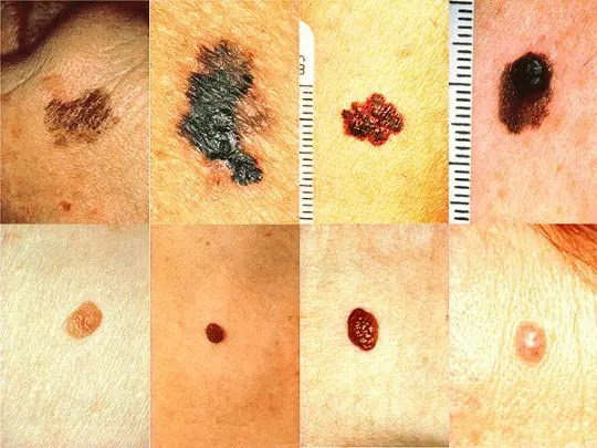 How do you treat melanoma, its types with risk factors explained 2020
