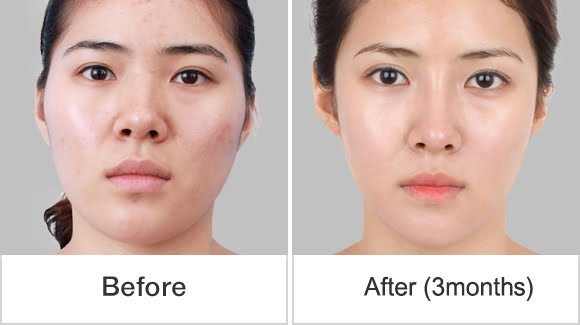 짱이뻐! - The Best Korean Face Contouring and Sharp Nose Tip Wonjin Plastic Surgery