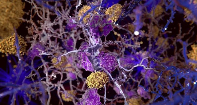 Alzheimer's disease: a crucial mechanism in the fight against the disease has been identified
