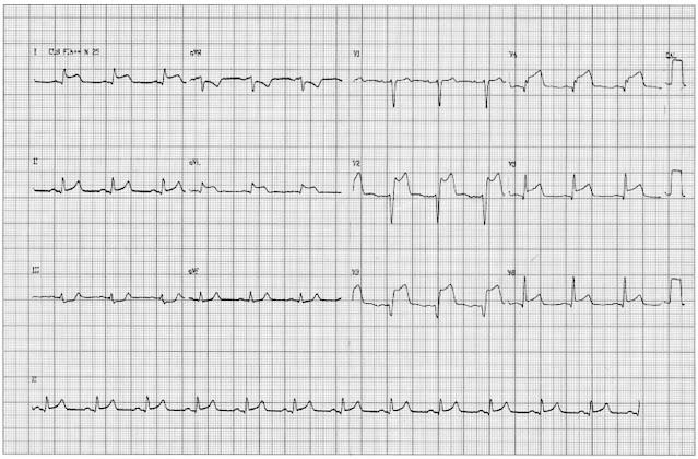 Exame físico da admissão: PA = 100 x 60 mmHg, FC = 70 bpm, FR = 18 irpm, Sat = 92%. Ritmo cardíaco regular em 2 tempos sem sopros, murmúrio vesicular presente e simétrico com estertores crepitantes em base, abdome globoso, fígado há 4 cm do rebordo costal direito, baço não percutível. Extremidades: pulsos periféricos diminuído, edema 3+/4+. ECG abaixo: