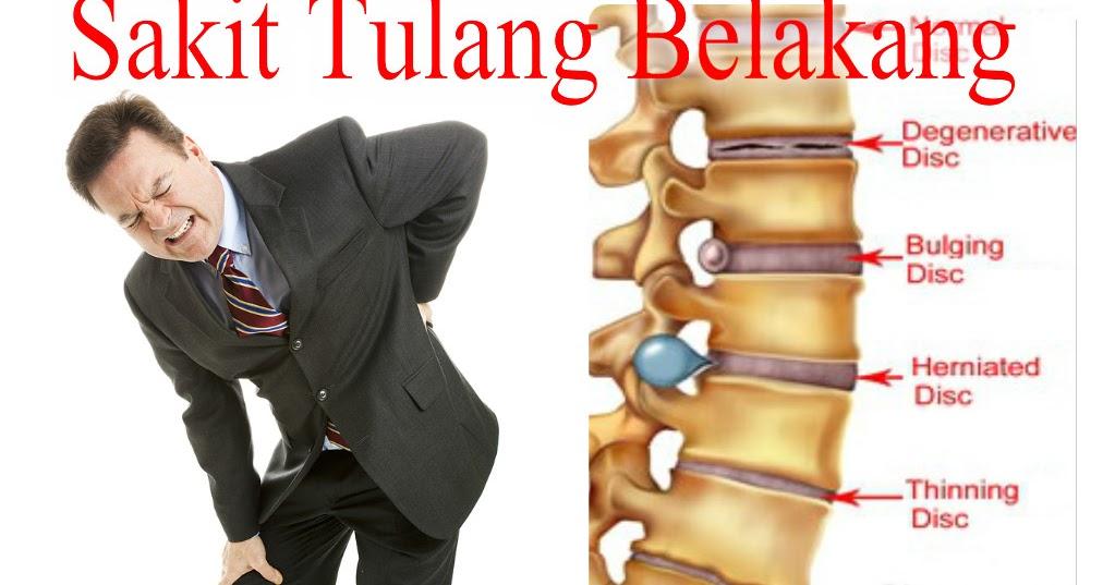 Image result for sakit tulang belakang blogspot