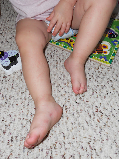 Baby claire 39 s blog hand foot mouth disease - Rash on legs after swimming in pool ...
