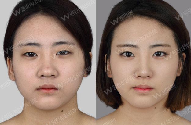 짱이뻐! - Before and After Photos Korean Eye Plastic Surgery