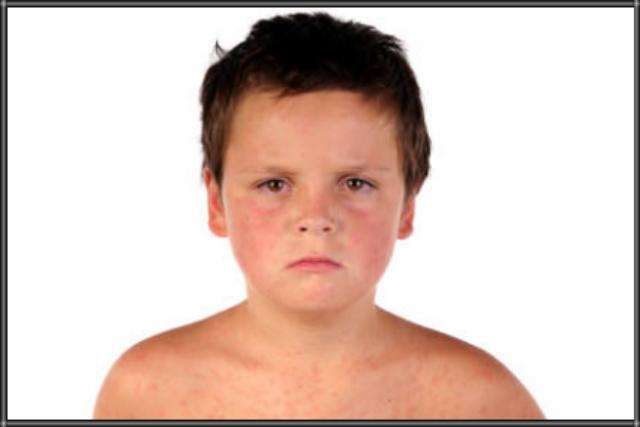 3 Cara Mengatasi Biduran Pada Anak Secara Alami Dengan Bahan Tradisional