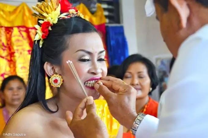Teeth filling in Indonesia