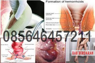 Penyakit Hemoroid (Wasir) Stadium 4, Obatnya Apa