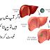 اگر آپ میں یہ علامات ہیں تو ہیپاٹائٹس کا ٹیسٹ کروا لیں