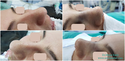 Nose Job in Istanbul, Turkey - Rhinoplasty