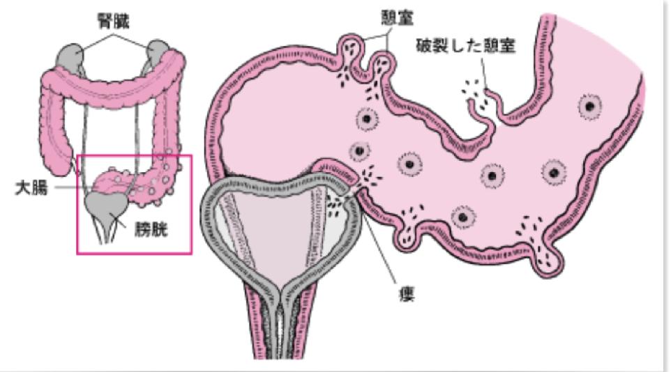 ろう 膀胱