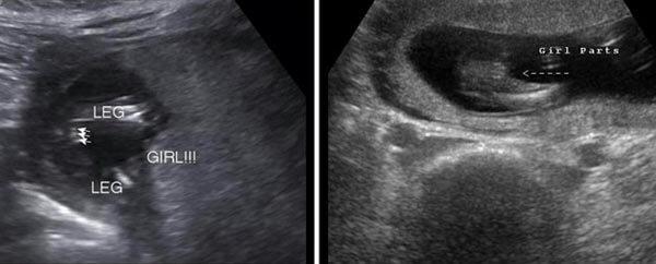 15 Haftalık Kız Bebek Ultrason Görüntüsü