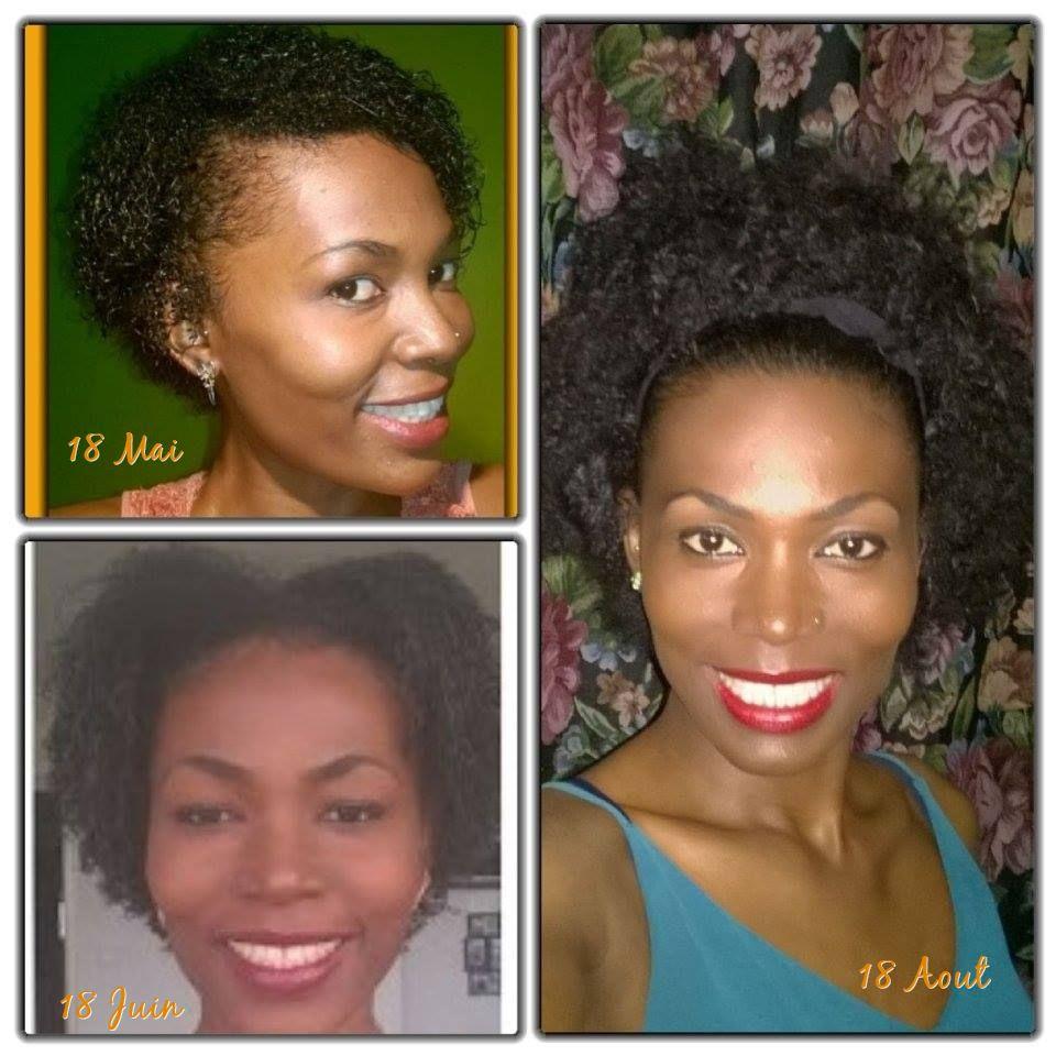 Acceleration de la pousse des cheveux