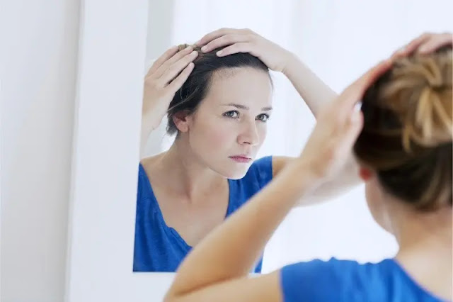 Common causes of hair loss in women