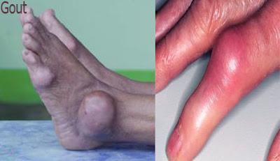 Gout,গাঁটেবাত