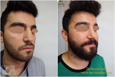 Nose Job For Men in İstanbul