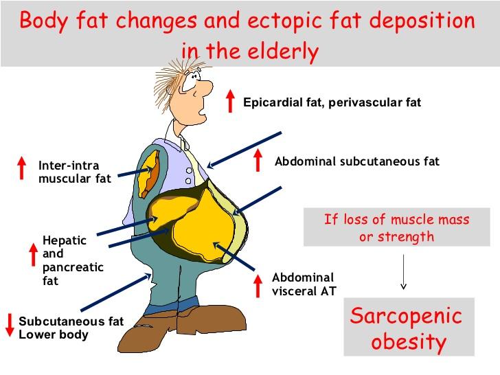 definizione del grasso ectopico