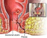 obat tradisional untuk menyembuhkan fistula ani
