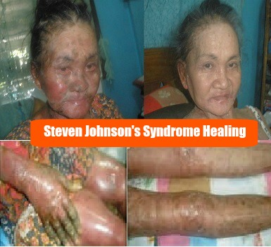 Quantumin Plus Steven Johnson Syndrome Healing