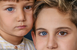 Brothers are born with stunning DIFFERENT-coloured eyes