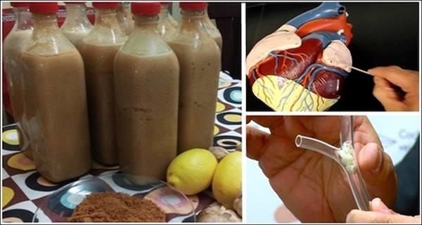 Ramuan Jamu Ini Efektif Mengatasi Masalah Bagi Anda Yang Mengidap Masalah Kolestrol dan Jantung !! begini Cara membuatnya