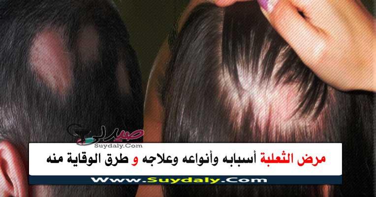 الثعلبة الأسباب والعلاج والأنواع وطرق الوقاية منها والعلاج بالأعشاب Alopecia