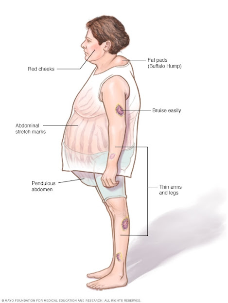image result for cushing syndrome