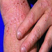 একজিমা (Eczema) কি? ইহার কারণ, লক্ষণ ও নিরাময়ে হোমিওপ্যাথির ব্যবহার