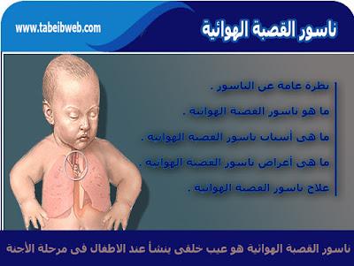 ناسور القصبة الهوائية عند الأطفال Tracheoesophageal fistula