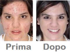 come-sbarazzarsi-di-acne-naturalmente