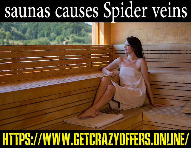 Spider veins causes and methods of treatment